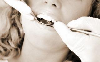Возврат подоходного налога за лечение зубов — как не упустить шанс